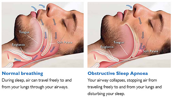 DOT Sleep Apnea FAQs